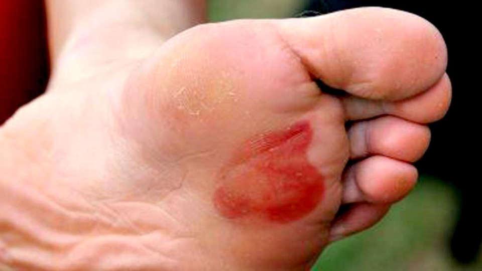 Cómo prevenir ampollas en los pies